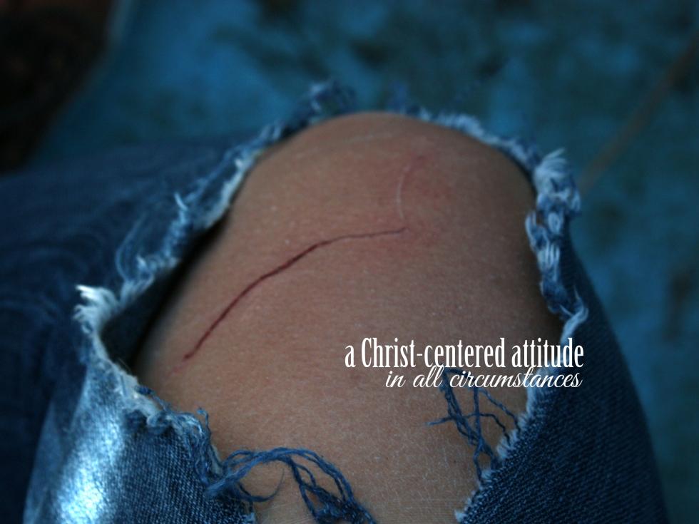 bumps_bruises_prayers